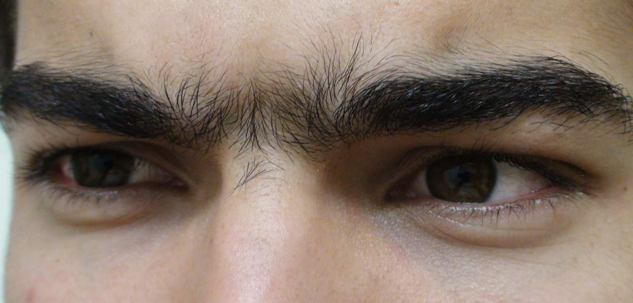the unibrow situation