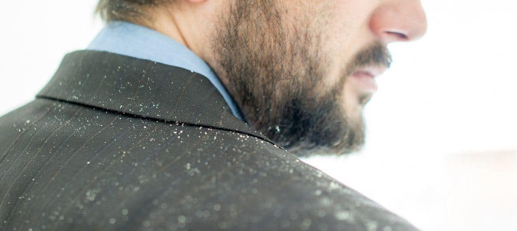 Whats up with that dandruff