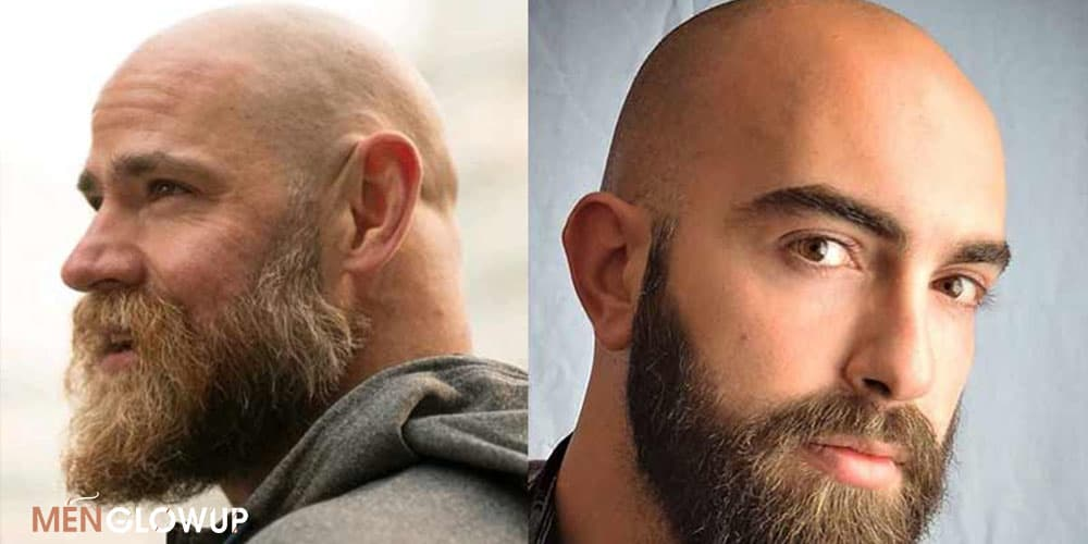 How To Get Bald With Beard Look - MGU